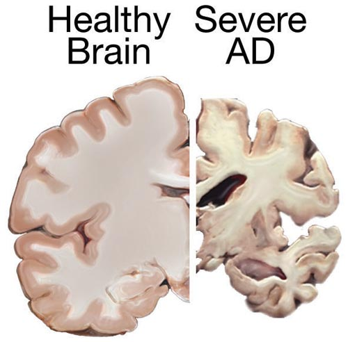 https://commons.m.wikimedia.org/wiki/File:Alzheimers_brain.jpg#mw-jump-to-license